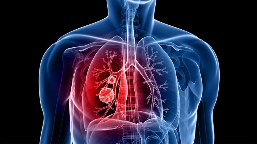 Workshop vai debater o tratamento no cancro no pulmão em Lisboa