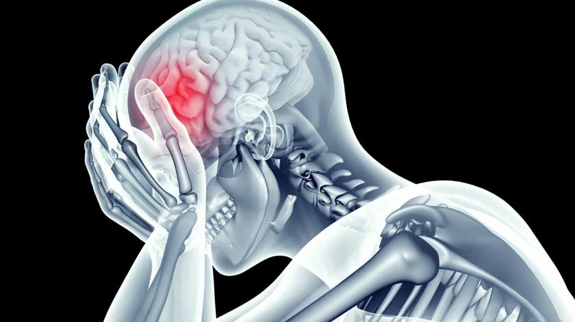 Qual o impacto do colesterol em excesso no cérebro?