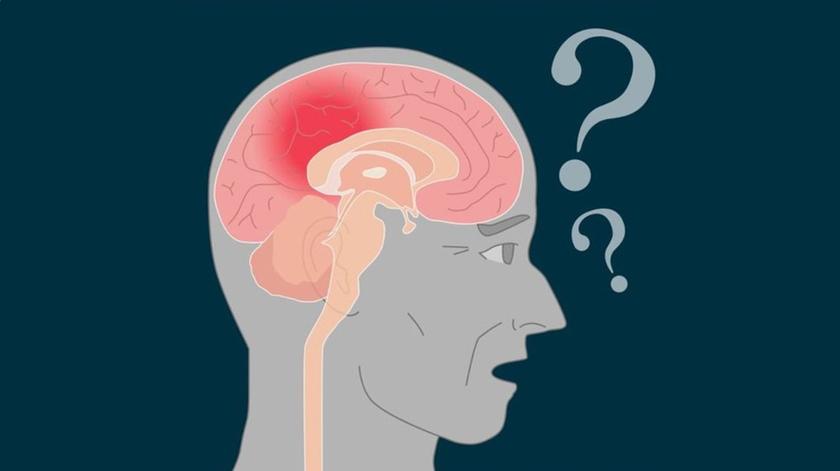 Conheça os sintomas da Doença de Alzheimer
