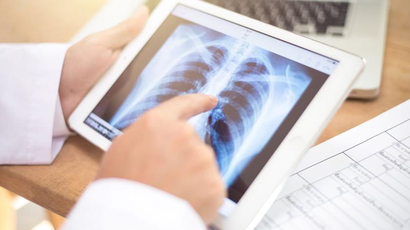 Projeto reduz tempo entre diagnóstico e tratamento do cancro do pulmão