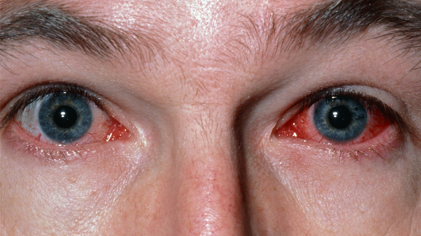 Tenho um derrame no olho! O que devo fazer?