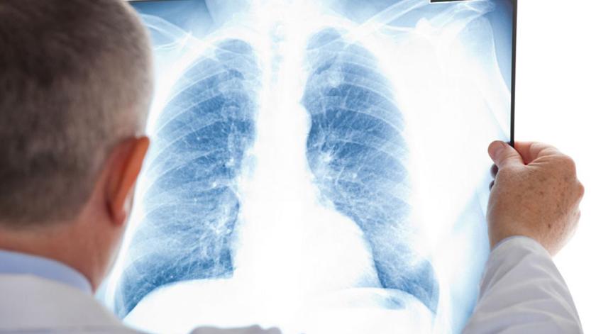 O que é a Pneumonia?
