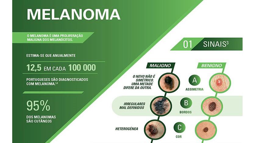 Melanoma: O papel da imunoterapia como estratégia terapêutica