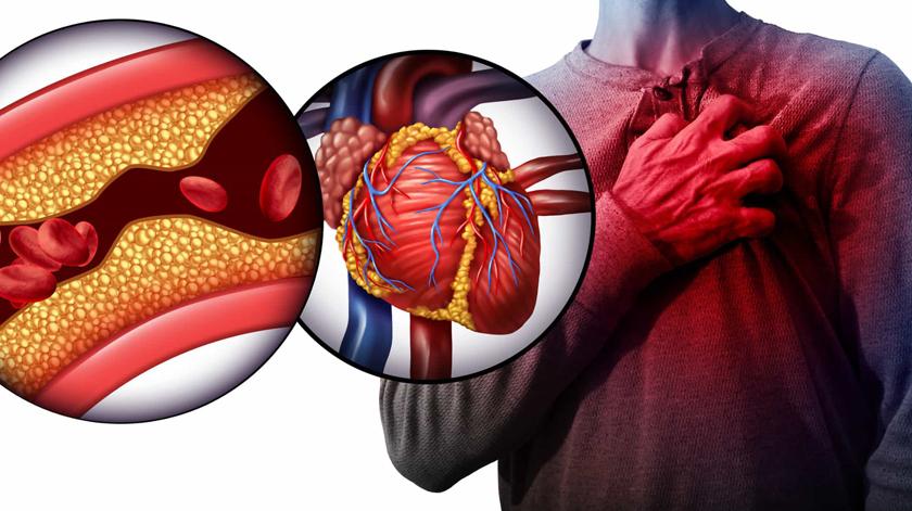 Colesterol e Covid-19: É fundamental controlar os fatores de risco, dizem os especialistas