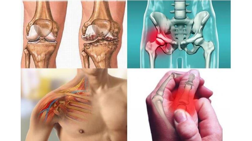 Artrose: exercícios que aliviam a dor