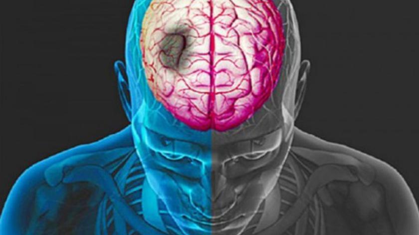 Covid-19: Acidentes vasculares cerebrais comuns entre doentes com complicações neurológicas – estudo