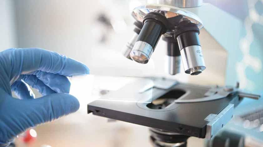 Investigação doença de Alzheimer