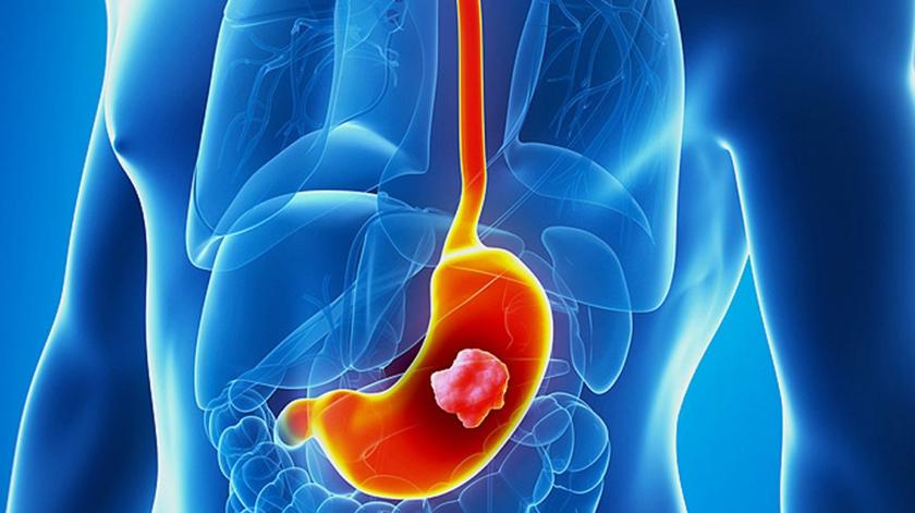 Investigadores do Porto melhoram diagnóstico precoce do cancro gástrico