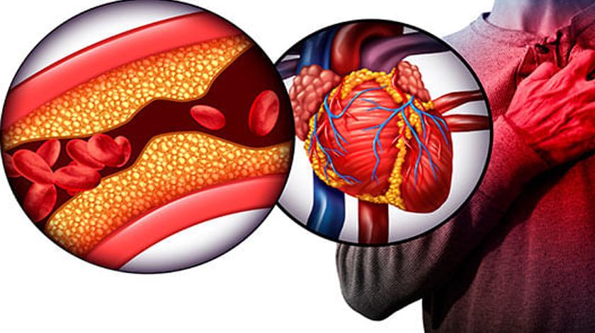 Investimento no estudo do tratamento da doença coronária