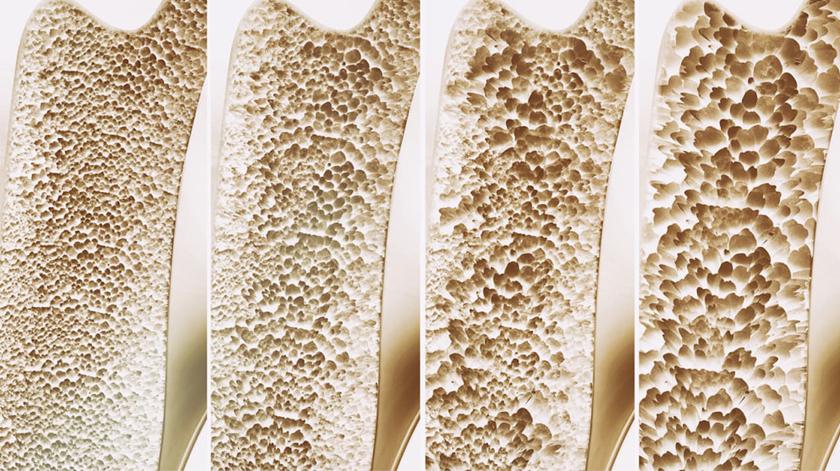 Osteoporose: proteja os seus ossos