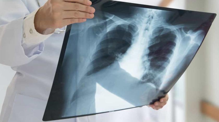 Projeto-piloto realiza raio-x pulmonar no domicílio de utentes