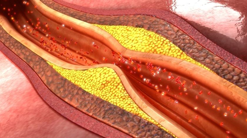 Importante detetar fatores de risco da aterosclerose