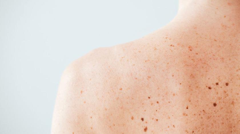 Aumentam doentes com cancro da pele