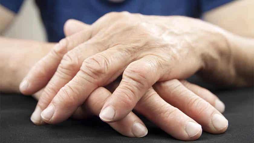 Artrite reumatoide: fármaco com dificuldade de abastecimento no 2.º semestre